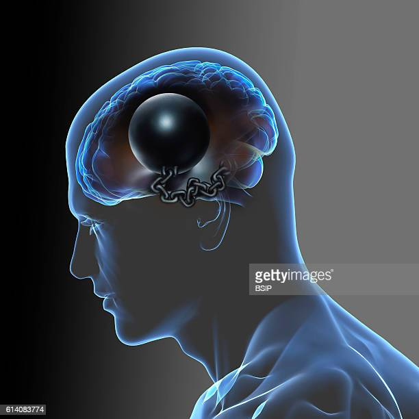 Conceptual image of the brain Heavy headed tiredness psychological hold