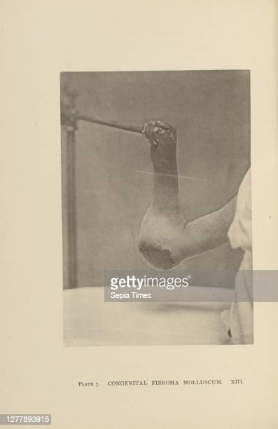 Congenital Fibroma Molluscum; Charles B. Brigham ; Cambridge, Massachusetts, United States; 1876; Heliotype; 14.2 × 9.8 cm .