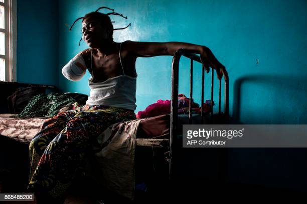 Congolese women who has had her arm amputated after a gun shot wound sits on her bed on October 23 2017 in Tshikapa Conflict in the Kasai Provinces...