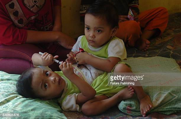Conjoined twin baby girls Al Putri Dewiningsih and Al Putri Anugrah photographed with their mother in Kampung Ciasta on June 13 2016 in Tasikmalaya...