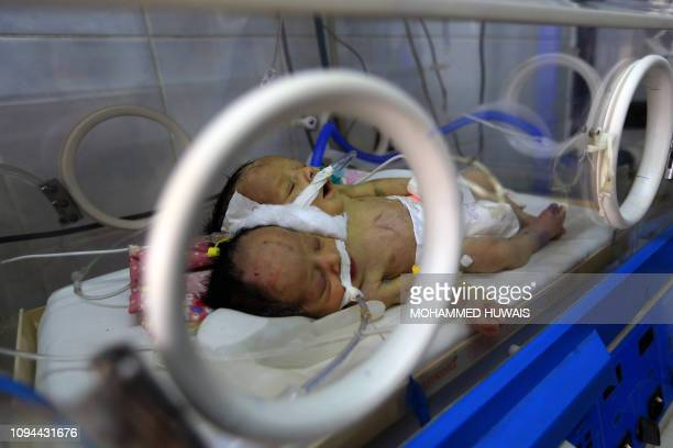 Conjoined twin boys Abdelkhaleq and Abdelkarim who were born around 10 days ago are pictured in an incubator at a hospital near the Yemeni capital...