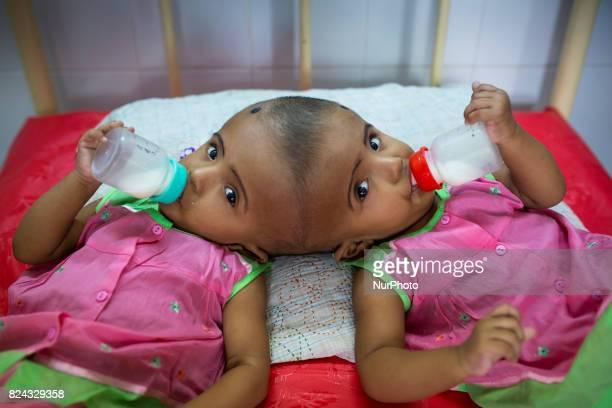 Conjoined twin girls Rabeya Islam and Rokeya Islam drinking milk at a hospital in Dhaka Bangladesh on July 29 2017 Taslima Khatun a school teacher...