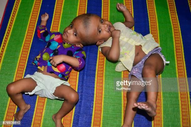 Conjoined twin girls Rabeya Islam and Rokeya Islam play at a Dhaka Medical Collage Hospital in Dhaka Bangladesh on November 21 2017 Taslima Khatun a...