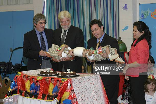 Conjoined twins Clarence and Carl Aguirre are held by their doctors Dr Robert Marion Dr James T Goodrich and Dr David Staffenberg along with their...