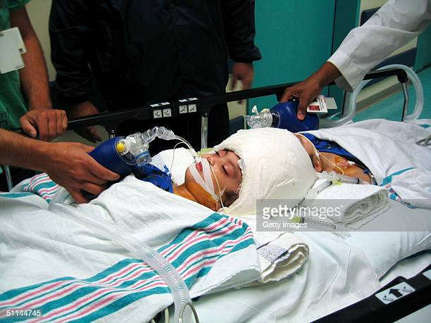 Conjoined twins Clarence and Carl Aguirre are wheeled into the operating room at The Children's Hospital August 4 2004 at Montefiore Medical Center...