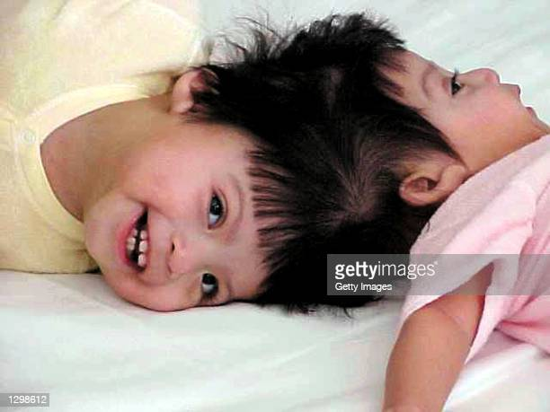 Conjoined twins Maria Teresa and Maria de Jesus QuiejAlvarez are shown in this photo taken June 8 2002 at Mettel Children's Hospital at UCLA in Los...