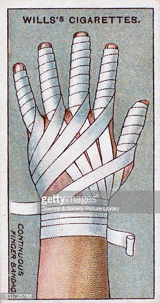 Continuous finger Bandage' Wills' cigarette card 1913 One of a series of 50 'First Aid' cigarette cards issued by WD HO Wills The image shows a hand...