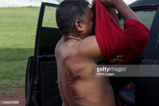 LHOKSEUMAWE ACEH INDONESIA A convicted person seen dressing with wounds on his back after being sentenced to whips for violating the Islamic Sharia...