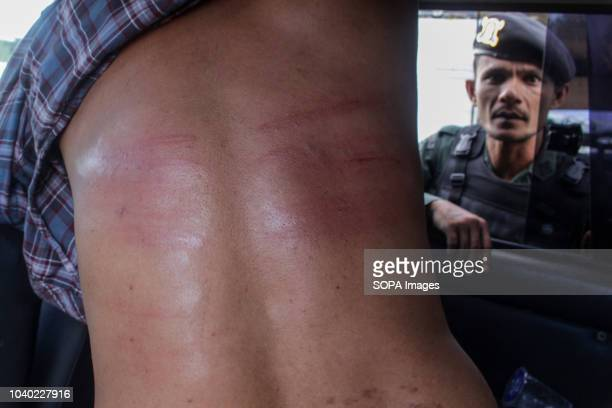 LHOKSEUMAWE ACEH INDONESIA A convicted person seen with wounds after being sentenced to whips for violating the Islamic Sharia law Although...