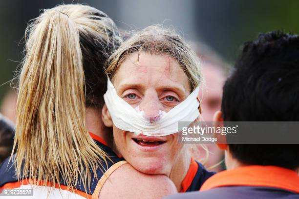 Cora Staunton of GWS celebrates the win after sustaining a nose injury during the round three AFLW match between the Collingwood Magpies and the...