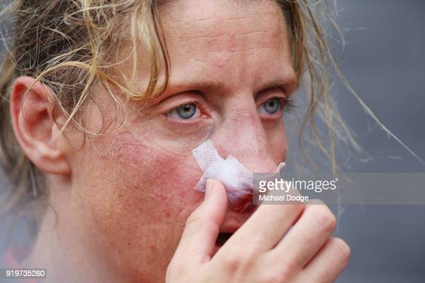 Cora Staunton of GWS looks on after sustaining a nose injury during the round three AFLW match between the Collingwood Magpies and the Greater...