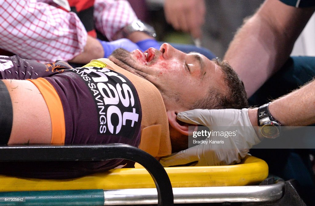 Corey Oates of the Broncos is taken from the field injured during the NRL Semi Final match between the Brisbane Broncos and the Penrith Panthers at Suncorp Stadium on September 15, 2017 in Brisbane, Australia.