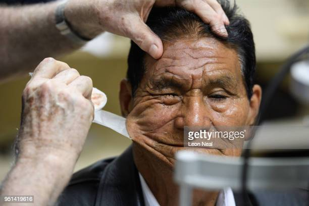 Corneal edema aphakia patient Jose aged 87 has his eye patch removed before undergoing postop tests after the previous days surgery at the IRO on...