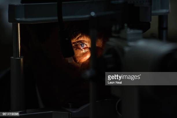 Corneal edema aphakia patient Jose aged 87 undergoes postoperative tests after the previous days surgery at the IRO on April 19 2018 in Trujillo Peru...