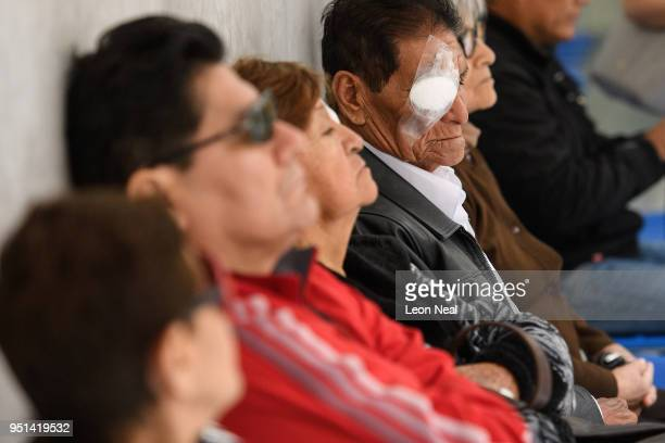 Corneal edema aphakia patient Jose aged 87 waits to undergo postop tests after the previous days surgery at the IRO on April 19 2018 in Trujillo Peru...