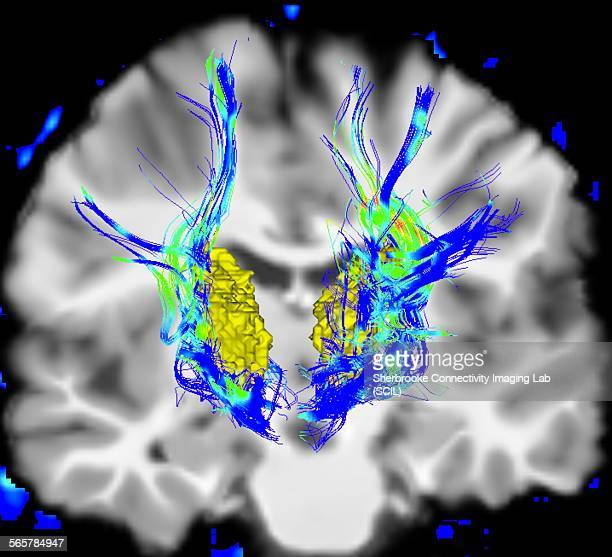Coronal view of a human brain in Parkinsons disease. Yellow surface is the thalamus and blue/green areas highlight fibers of the motor system