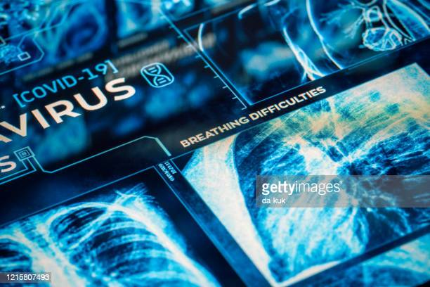 coronavirus breathing difficulties symptoms - bubonic plague stock pictures, royalty-free photos & images