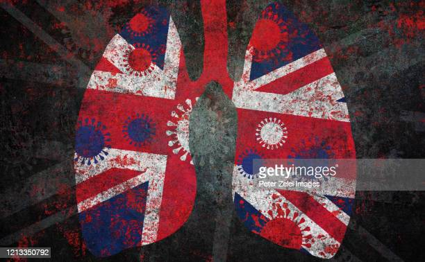 coronavirus covid-19 and lung in british colors - union jack stock pictures, royalty-free photos & images