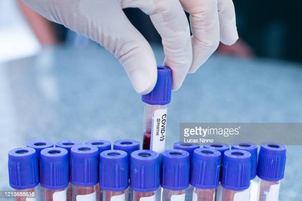 coronavirus covid-19 positive test - infectious disease stock pictures, royalty-free photos & images