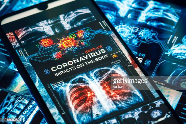 covid-19 coronavirus impacts on the human body - bubonic plague stock pictures, royalty-free photos & images