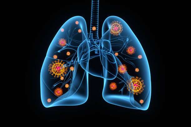 coronavirus infection of lungs, conceptual illustration - human lung stock pictures, royalty-free photos & images