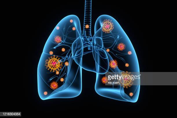 coronavirus infection of lungs, conceptual illustration - infectious disease photos et images de collection