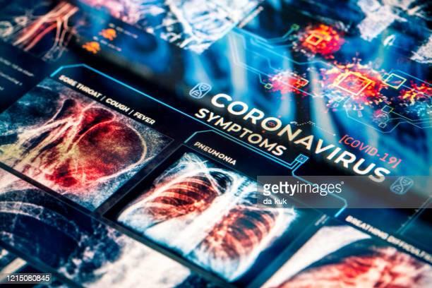 covid-19 coronavirus symptoms - bubonic plague stock pictures, royalty-free photos & images