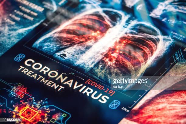 covid-19 coronavirus treatment - bubonic plague stock pictures, royalty-free photos & images