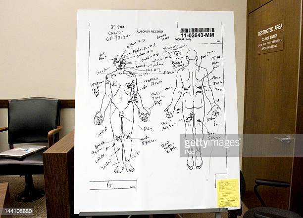 Coroner's drawing indicates where various external injuries were observed on Kelly Thomas' body at the time of autopsy during day two of the...