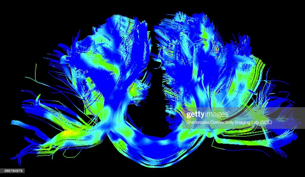 Corpus callosum, left-right connections, in a Parkinsons brain : Stock Photo