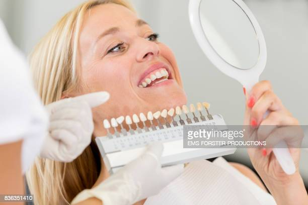 cosmetic dentistry dentist's office - women in her 30s with long blonde hair lying on chair before receiving dental care check up and teeth whitening bleaching, female doctor wearing exam gloves checks tooth color with a comparison veneer scale chart. - tandblekning bildbanksfoton och bilder