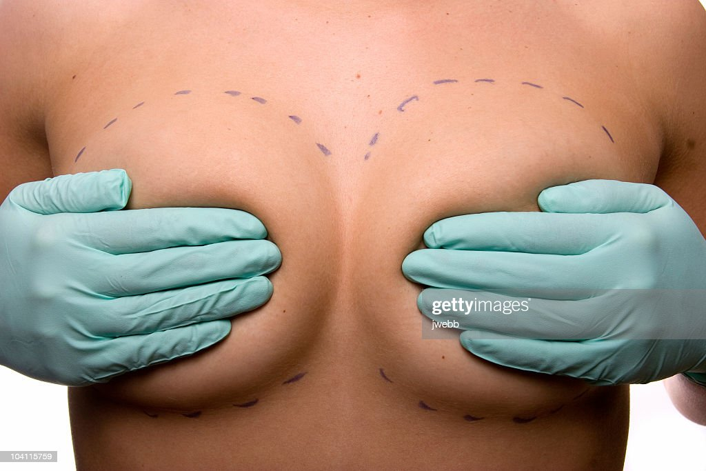 Cosmetic Surgery Breast Implants : Stock Photo