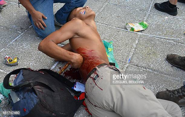 A Costa Rican fan lies on the street after being stabbed on his back while watching the Brazil 2014 FIFA World Cup football match against Netherlands...