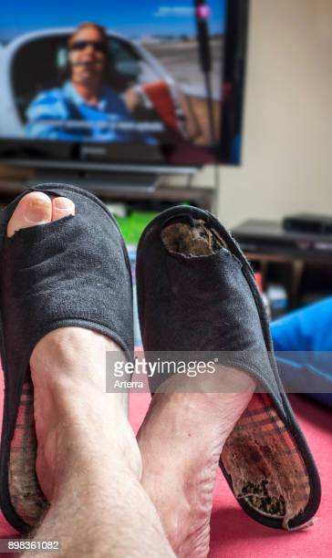 Couch potato lazy man in comfy chair wearing worn slippers with big toes sticking through and watching television set in living room