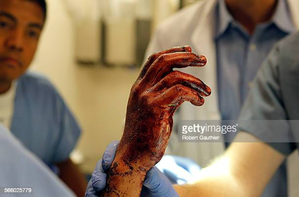 LA County/USC trauma doctors and nurses look over the bloodied hand of a man who was the victim of numerous stab wounds including his hand
