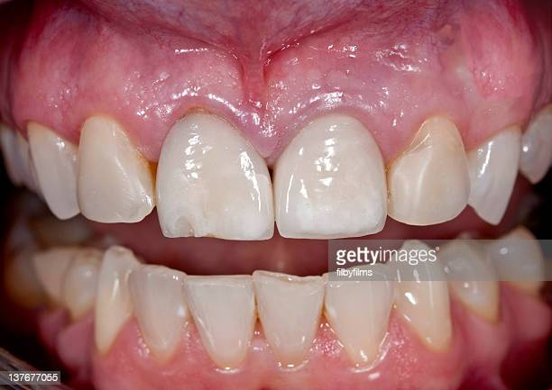 cracked veneer on front tooth - ugly teeth stock photos and pictures