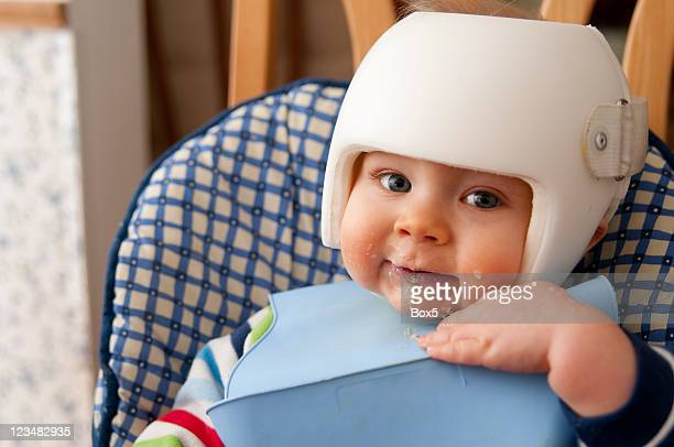 Cranial Remolding helmet worn for the treatment of plagiocephaly