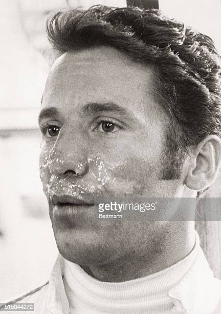 Crash Victim. Speedway, Indianapolis, Ind.: Mario Andretti of Nazareth, Pa., shows newsmen the face burns he received when his Lotus Ford hit a wall...