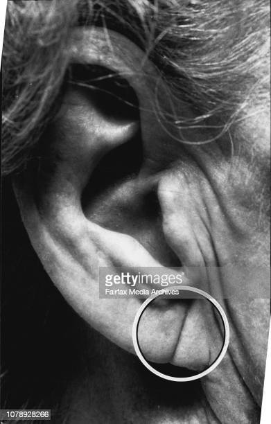 Crease in Earlobe has been found to increase risk of Heart DiseaseCrease marks on the ear lobes may be a warning sign of serious heart disease...