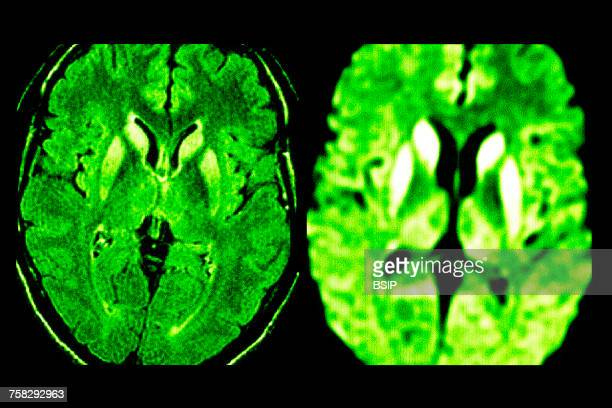 creutzfeldt jakob disease,mri - diencephalon stock photos and pictures