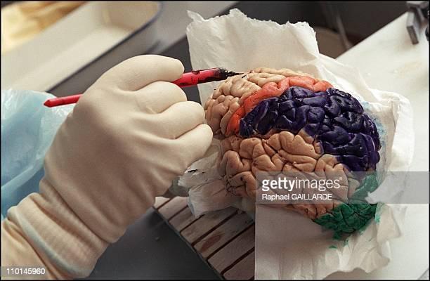 Creutzfeldt Jakob The pathological anatomy of Pr Hauw at Paris' Hopital de la PitieSalpetriere in France on February 01 2001 Study of a brain to...