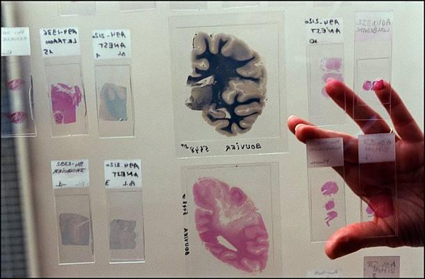Creutzfeldt Jakob: The pathological anatomy of Pr. Hauw at Paris ...