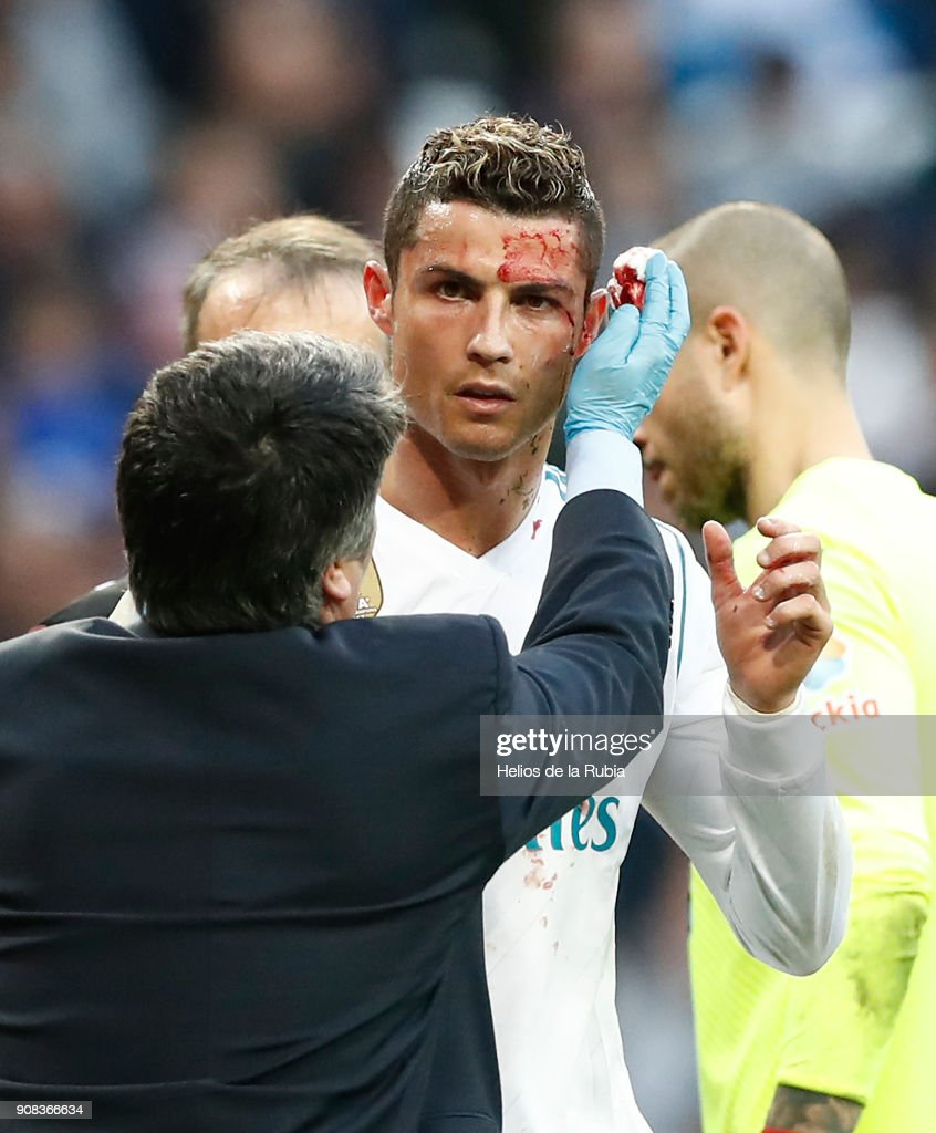 Cristiano Ronaldo of Real Madrid CF is looked after following an injury during the La Liga match between Real Madrid CF and Deportivo La Coruna at Estadio Santiago Bernabeu on January 21, 2018 in Madrid, Spain. (Photo by Helios de la Rubia/Real Madrid via Getty Images).