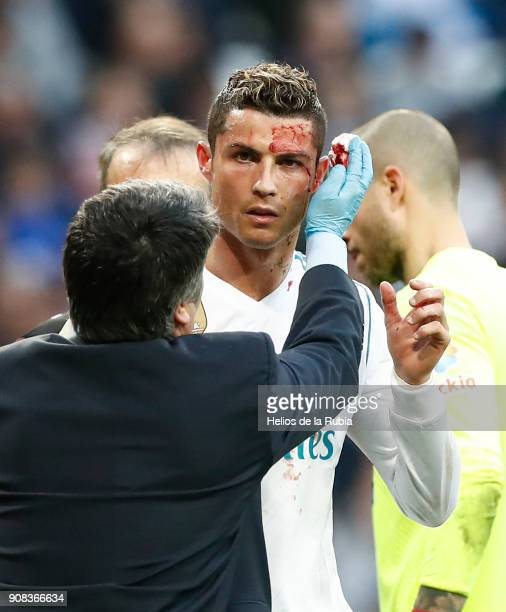 Cristiano Ronaldo of Real Madrid CF is looked after following an injury during the La Liga match between Real Madrid CF and Deportivo La Coruna at...