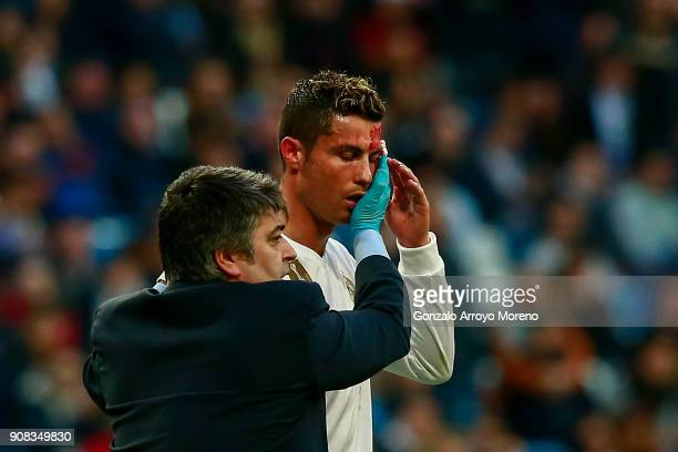 Cristiano Ronaldo of Real Madrid CF leaves the pitch after being damaged during the La Liga match between Real Madrid CF and Deportivo La Coruna at...