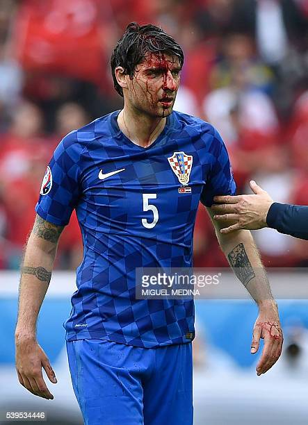 Croatia's defender Vedran Corluka leaves the pitch with a head injury during the Euro 2016 group D football match between Turkey and Croatia at the...