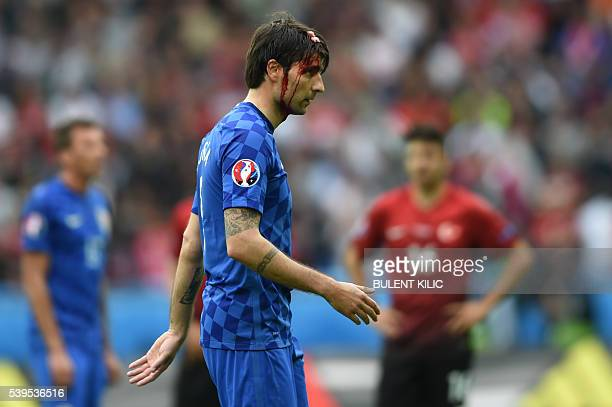 TOPSHOT Croatia's defender Vedran Corluka walks off the pitch with a head injury during the Euro 2016 group D football match between Turkey and...