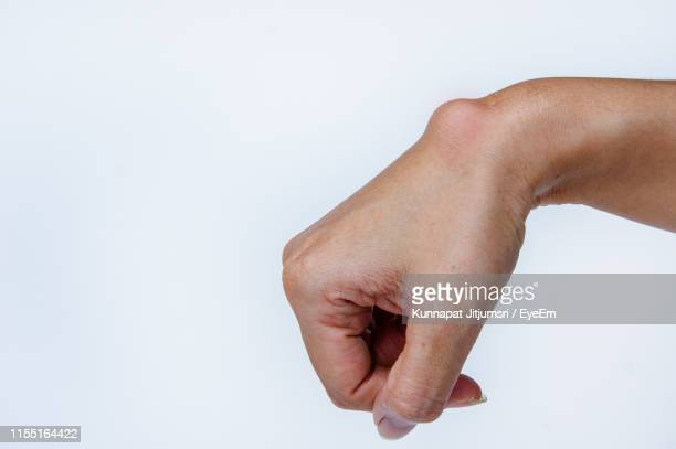 cropped hand of person with cyst against white background - cyst stock pictures, royalty-free photos & images