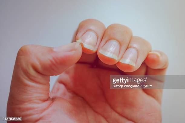 cropped hand with broken fingernail against white background - fingernail stock pictures, royalty-free photos & images