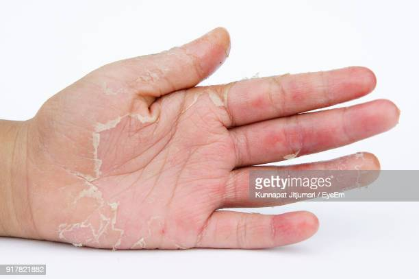 Cropped Hand With Skin Condition Over White Background